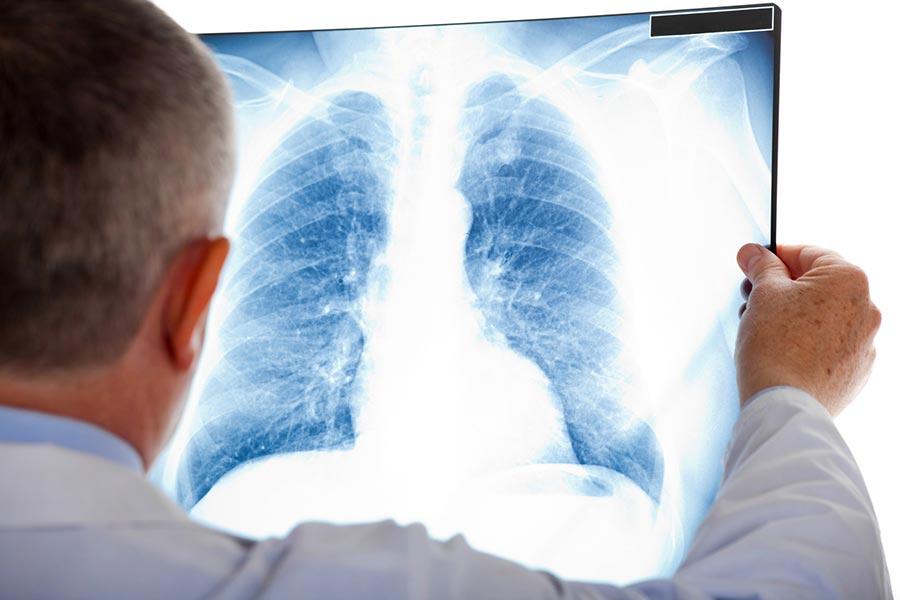 Рентген на дому в Курске